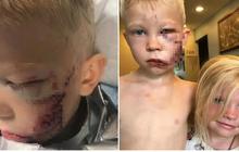 """Phải khâu 90 mũi vì xả thân cứu em gái khỏi chó dữ, cậu bé được thế giới phong """"người hùng"""" và khuôn mặt hiện tại gây xúc động mạnh"""