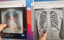 Bị ho kéo dài, cô gái đi chụp X-quang rồi hoảng hồn phát hiện bí mật khó tin trong cơ thể mình bấy lâu, bác sĩ cũng phải choáng váng
