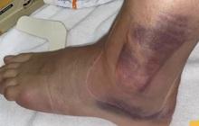 Một ngày sau chấn thương kinh hoàng của cầu thủ Olympic Tây Ban Nha: Cổ chân bầm tím, sưng tấy gây sợ hãi
