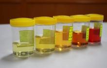 Khi đi vệ sinh mà nước tiểu có màu vàng đậm kèm theo mùi hôi là dấu hiệu của bệnh gì?
