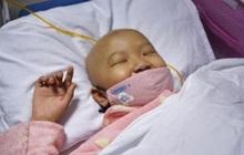 Bé gái 8 tuổi qua đời vì ung thư gan, bác sĩ trách: Sao lại để đứa trẻ ăn những thứ này