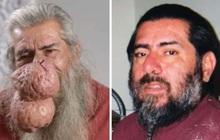 Bị 2 khối u siêu to khổng lồ mọc trên mặt, người đàn ông tuyệt vọng cầu cứu chương trình nặn mụn khét tiếng giúp đỡ
