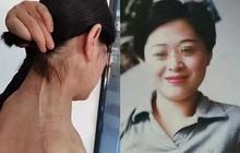 """Bị bạn trai cũ cuồng ghen tạt axit và đeo bám suốt 12 năm trời, người phụ nữ suýt bị đâm kim tiêm chứa HIV vào người đã có màn """"lật kèo"""" đỉnh cao"""