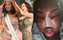 Hoa hậu chuyển giới kế nhiệm Hương Giang gây sốc khi đăng ảnh khuôn mặt sưng vù đau đớn, tiết lộ nguyên nhân đầy xót xa
