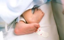 Em bé chào đời với thai nhi trong bụng, 500.000 ca mới có một