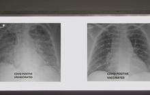So sánh ảnh chụp phổi của bệnh nhân COVID-19 đã tiêm và chưa tiêm vaccine, phát hiện điều kinh ngạc