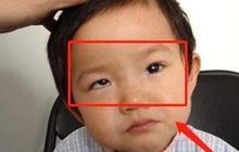 Bé trai 5 tuổi mắt thâm đen, con ngươi 1 bên gần như biến mất, tất cả chỉ vì thói quen độc hại này