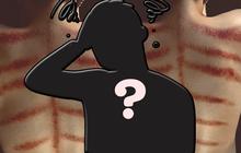 1 sao nam Vbiz gây hoang mang khi lộ lưng chi chít vết đỏ bầm, nguyên nhân nhanh chóng được chính chủ hé lộ