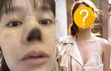 1 năm sau vụ phẫu thuật thẩm mỹ thất bại khiến mũi bị hoại tử, nhan sắc của mỹ nhân đình đám Cbiz lột xác hoàn toàn
