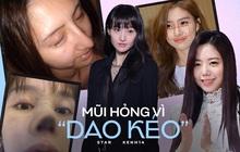 """Rợn người hậu quả thẩm mỹ mũi thất bại: Trịnh Sảng """"đâm thủng vạn vật"""", Kim So Eun lồi kỳ lạ nhưng dị nhất là vụ mỹ nhân bị hoại tử"""