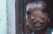 Bé gái có 2 mũi trên gương mặt dị dạng nhưng được cả vùng yêu mến, có được mời cũng không phẫu thuật thẩm mỹ vì lý do thú vị