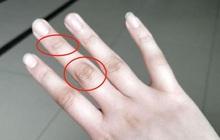 4 dấu hiệu bất thường ở ngón tay giữa cảnh báo gan đang yếu, nên đi khám ngay