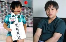 """Bi kịch thần đồng diễn xuất bị bố mẹ coi như """"máy in tiền"""": Bị ép đóng phim từ 2 tuổi, khổ sở vì bệnh tật đày đọa"""