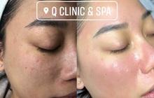 Q Clinic & Spa chia sẻ 6 lưu ý trang điểm khi da bị mụn