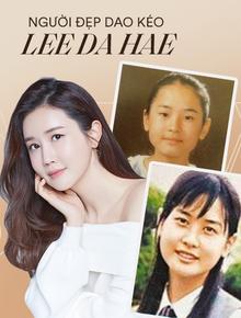 """Mỹ nhân """"dao kéo"""" thị phi nhất Kbiz Lee Da Hae: Hiện tượng 1 thời sụp đổ vì nghi án bán dâm, tình yêu bất ngờ với ca sĩ """"mát xa đèn mờ"""""""