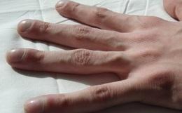 """4 dấu hiệu """"dễ thấy"""" trên bàn tay và bàn chân lại ngầm cảnh báo bệnh ung thư ác tính mà nhiều người không biết"""