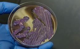 """Mọi thông tin về căn bệnh """"nhiễm khuẩn ăn thịt người"""" - Whitmore, đặc biệt là cách phòng ngừa cần lưu ý"""