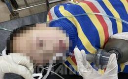 Bé trai Trung Quốc nghi nhiễm virus corona nhập viện khi đi du lịch tại Hải Dương