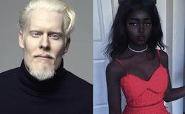"""8 người sinh ra với màu da lạ kỳ chẳng giống ai nhưng lại đẹp đến mê hoặc: Từ """"búp bê Barbie đen"""" đến """"cô gái bạch tạng đẹp nhất thế giới"""""""