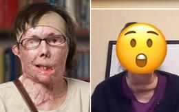 Bị chồng cũ tạt axit hủy hoại gương mặt thành quái vật, người phụ nữ được phẫu thuật ghép mặt từ người chết cho kết quả đầy ngỡ ngàng