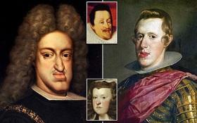 """Sự thật đằng sau căn bệnh """"hàm bạnh"""" ám ảnh Hoàng tộc châu Âu suốt 4 thế kỷ: Hệ quả từ hàng trăm năm loạn luân của cả gia tộc"""