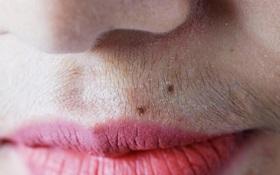 Nữ giới mắc bệnh phụ khoa thường gặp phải 5 triệu chứng trên khuôn mặt, check xem bạn có gặp phải triệu chứng nào hay không