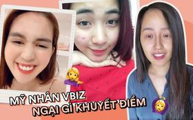 """Mỹ nhân Vbiz tự """"bóc trần"""" khuyết điểm: Hoà Minzy gây sốc với mặt mụn chi chít, Mai Phương Thuý như người khác với 0% make up"""