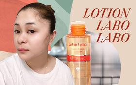 Tuyệt hơn cả serum, chai lotion bình dân Nhật Bản đã giúp lỗ chân lông của cô bạn này nhỏ mịn đi thấy rõ