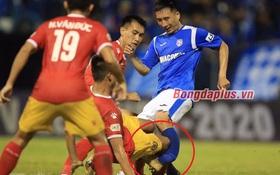 Sốc: Cầu thủ Than Quảng Ninh gãy chân sau pha va chạm kinh hoàng