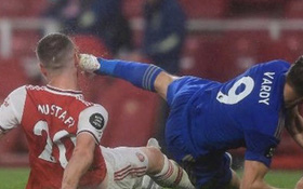 Tung cú kung-fu khiến mặt đối phương thủng lỗ chỗ nhưng tiền đạo Leicester vẫn được trọng tài khoan hồng
