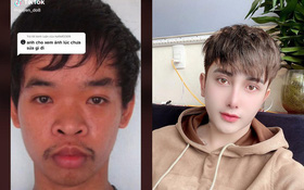 Phẫn nộ thanh niên Việt dùng ảnh tội phạm hiếp dâm để miêu tả quá trình lột xác trước và sau khi phẫu thuật thẩm mỹ