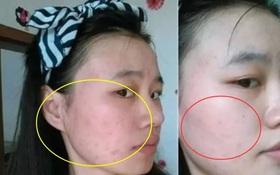 3 biểu hiện xấu xí trên khuôn mặt cho thấy buồng trứng của bạn đang lão hóa sớm, cần được chăm sóc càng sớm càng tốt