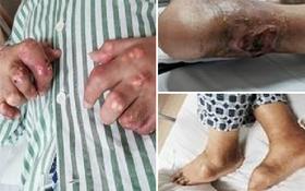 Chàng trai 27 tuổi bị thối chân, biến dạng khớp, bàn tay phủ đầy hạt tophi vì loại nước uống yêu thích của nhiều người