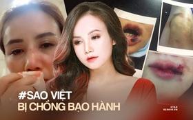 """Trước """"cô Xuyến"""" Hoàng Yến, loạt sao Việt từng bị chồng bạo hành dã man: Dương Yến Ngọc chịu đánh 2-3 lần⁄ tuần, 1 Hoa hậu còn muốn tự tử"""