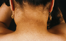 """Người có tuổi thọ ngắn thường có 4 cái """"đen"""" trên cơ thể, nếu có dù chỉ 1 cũng phải dè chừng"""