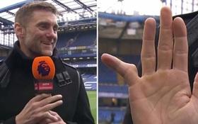 Cựu thủ môn Chelsea khoe ngón tay biến dạng đáng sợ, đồng nghiệp đứng cạnh buông lời nói đùa khiến tất cả im bặt