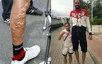 16 hình ảnh cơ thể vượt giới hạn của các VĐV Olympic, bạn sẽ có cái nhìn rõ nét hơn về nỗ lực cả đời của họ