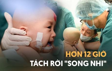 ẢNH: Khoảnh khắc xúc động trong suốt 12 tiếng phẫu thuật giúp Trúc Nhi - Diệu Nhi có được hình hài nguyên vẹn