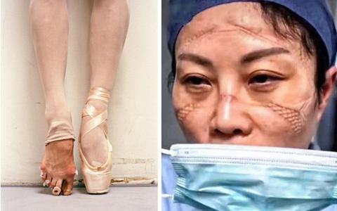 Đặc trưng ám ảnh của các ngành nghề: Từ mặt biến dạng của y bác sĩ vùng dịch đến bàn chân rướm máu của vũ công ballet, dancer