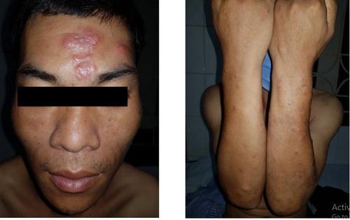 Bệnh phong tái xuất hiện ở Lạng Sơn