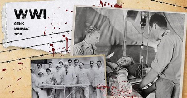 Mạng sống đổi lấy những mạng sống: Sự phát triển của y tế trong lòng Thế chiến thứ nhất xảy ra như thế nào