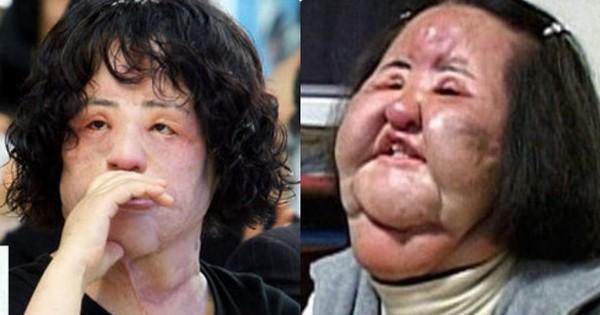 Thảm hoạ dao kéo Han Mi Ok qua đời ở tuổi 57: Tuổi trẻ điên cuồng thẩm mỹ, mua silicon, dầu ăn ở chợ đen về tự tiêm
