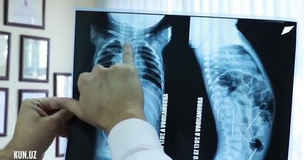 Uzbekistan: Con sốt cao, tiểu tiện khó khăn, mẹ đưa đến bệnh viện và ngã quỵ khi nhìn thấy hình chụp X-quang
