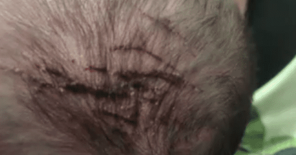 Bé gái chào đời với đỉnh đầu bị cào rách, gia đình tức giận yêu cầu lời xin lỗi từ phía bệnh viện