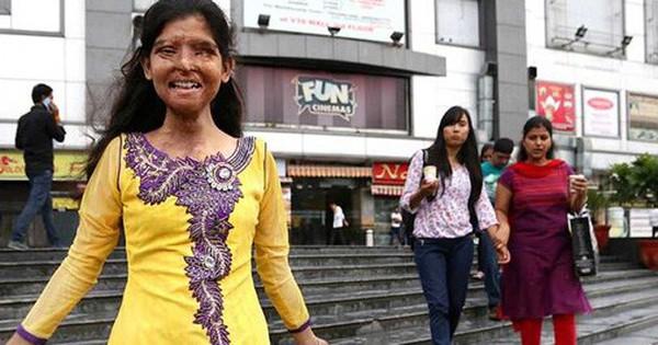Ám ảnh gương mặt bị tàn phá kinh hoàng vì axit của phụ nữ Ấn Độ