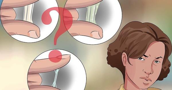 Dịch âm đạo tiết ra bất thường có thể là một dấu hiệu của nhiều bệnh phụ khoa nguy hiểm