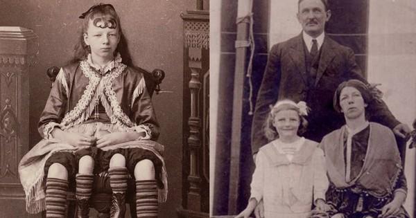 Cuộc đời người phụ nữ 4 chân: 13 tuổi làm ngôi sao gánh xiếc, sống đời sung túc với nghề triển lãm bản thân