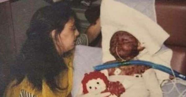 2 tuổi đã bị bỏng toàn thân vì máy giặt phát nổ, hơn 20 năm sau ai cũng bất ngờ khi nhìn thấy dáng vẻ của người phụ nữ ấy