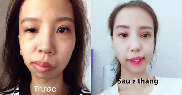 Bị bạn bè trêu chọc vì teo nửa bên mặt, cô gái Hà Nội lột xác sau phẫu thuật thẩm mỹ
