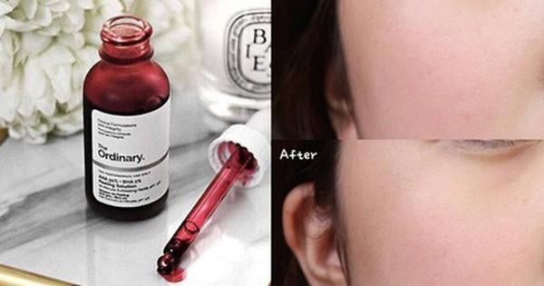 Peel da – phương pháp hô biến làn da mịn đẹp cực hot gần đây sẽ hiệu quả và an toàn nhất nếu bạn nắm rõ điều này